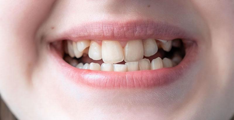 raddrizzare i denti sorti senza apparecchio fisso